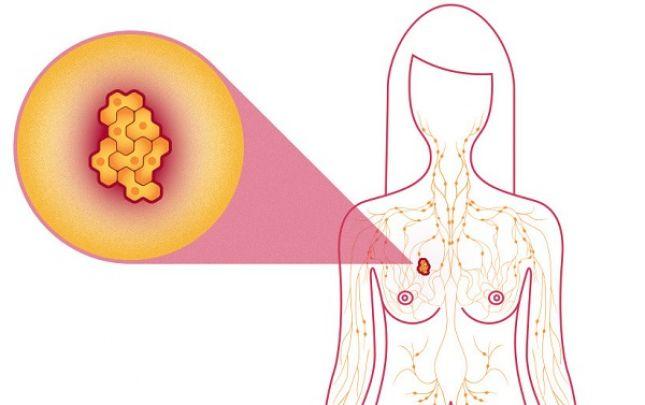 a rák rosszindulatú vagy jóindulatú a vestibularis papillomatosis eltűnt