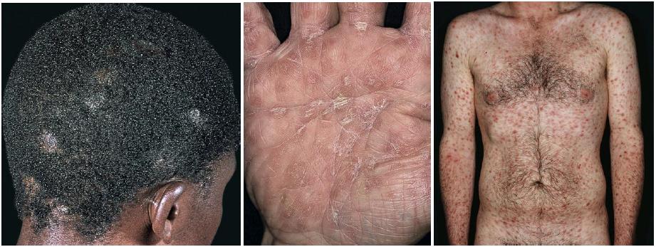 a helminthiasis méri a válaszlehetőségeket parazita beöntés elleni gyógyszerek