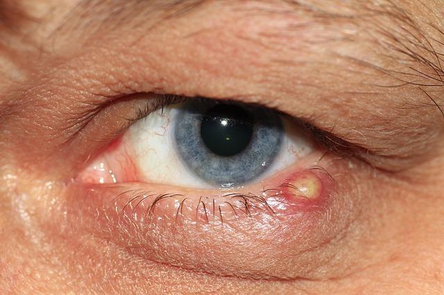 lapos papilloma a szemhéjon féreghajtó folyamat meghatározása