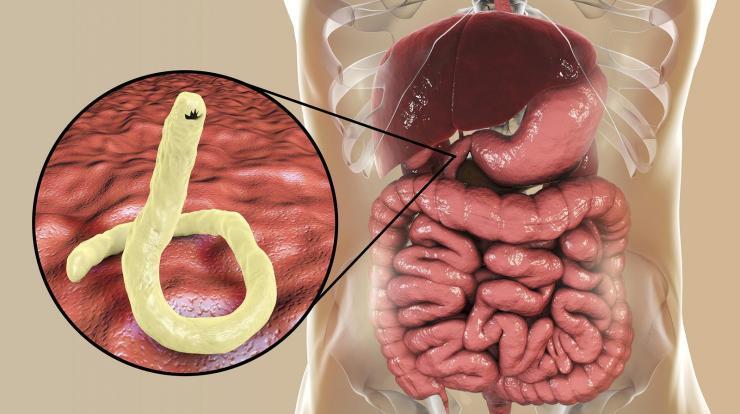 paraziták kódolják a ljudi tüneteket hpv ajakdudorok
