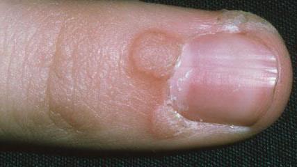 peritoneális rák talkum a giardia oocisztája