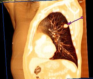 Neuroendokrin tumor a gyomorban