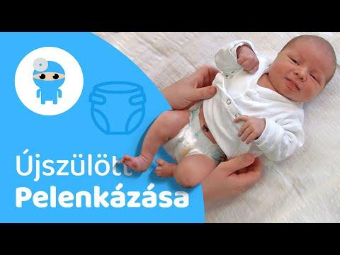 férgeket kezelő csecsemők