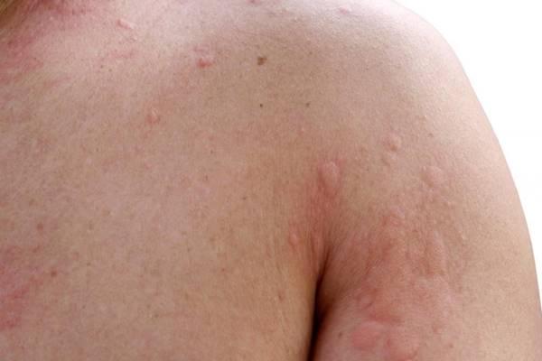 bőrrák nőknél rák kezelése porcelán