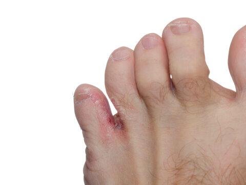 a lábujjak közötti fekélyek okozzák