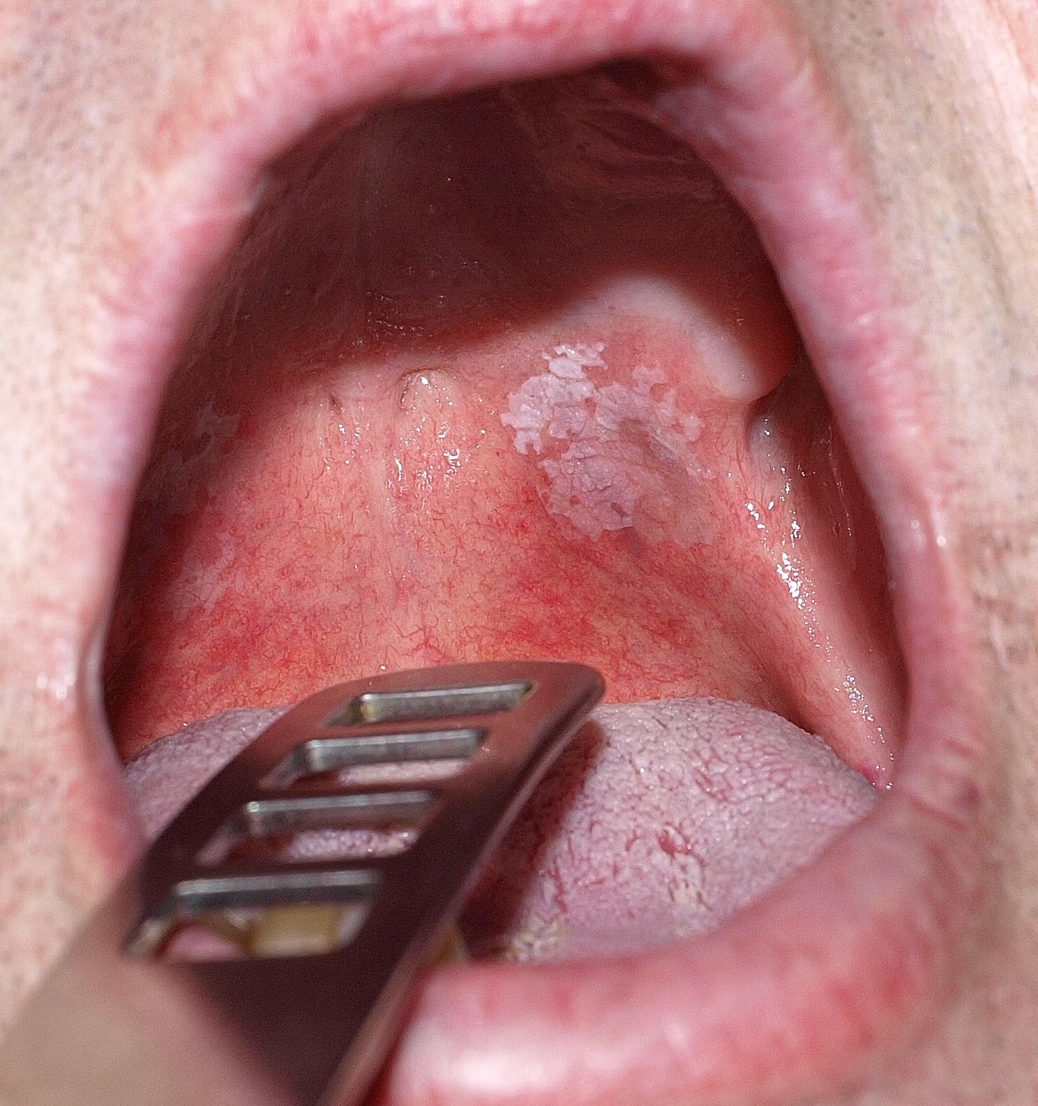 száj szemölcsök