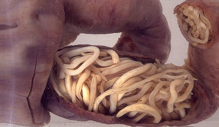 crevni paraziták kod dece lecenje