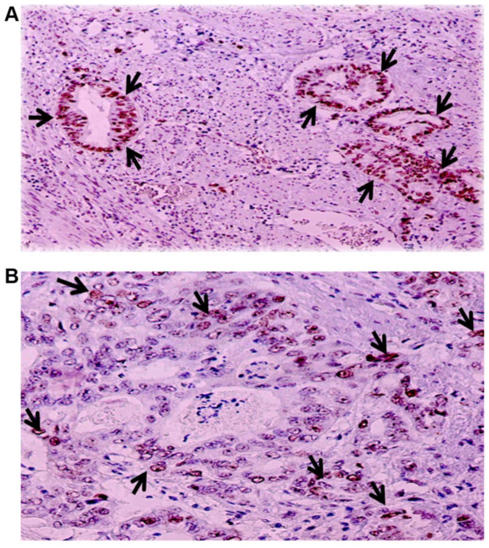 endometrium rák msi paraziták szaga
