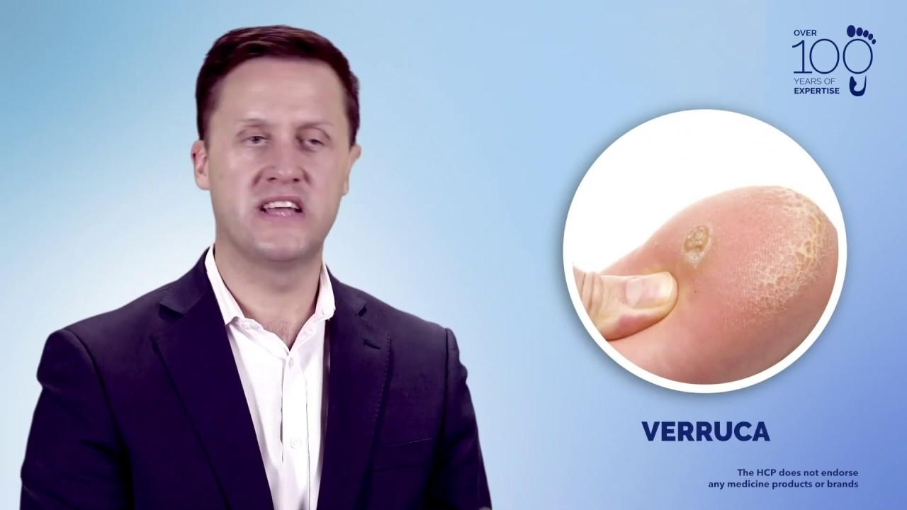 körömféreg az újszülöttek kezelésében