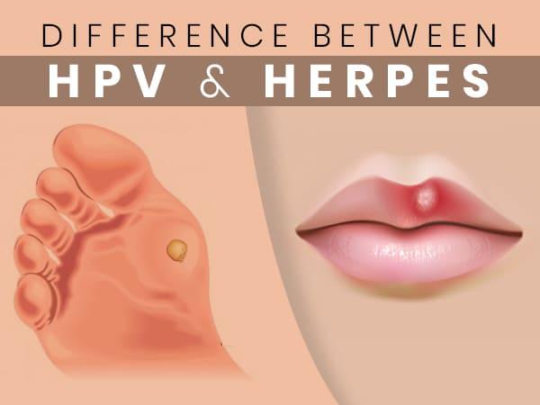 hilltopfarm.hu - HPV: ezt jobb, ha tudod a fertőző szemölcsökről