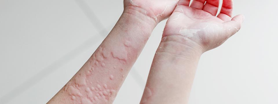 a kiütés kezelése enterobiosis mintavételi készlet