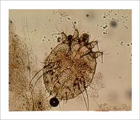 Paraziták a szervezetünkben: mikor gyanakodjunk? - HáziPatika, Paraziták kezelése az epehólyagban