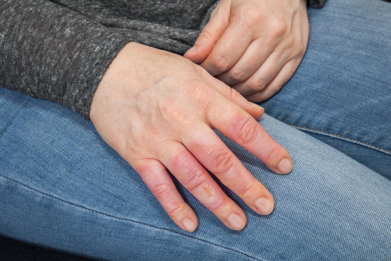 nedves ujjal, mint kezelni