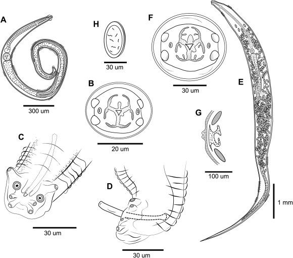 Pinworm biológia. Miért jött ki a féreg a végbélnyílásból