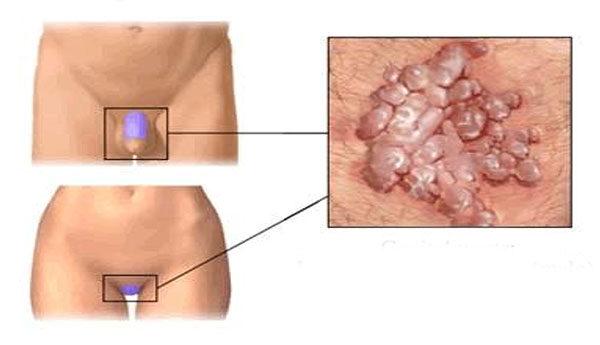 papilloma vírus férfi tünetei