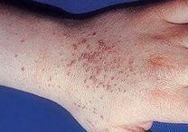 Szemölcs – a leggyakoribb bőrkinövés - Ezüstfény Magánklinika