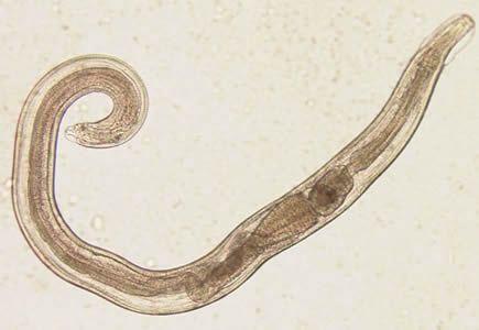 enterobius vermicularis verme