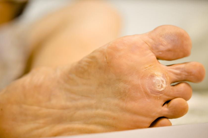 parazita étrend-kiegészítőkkel történő kezelés drontális plusz ara lyuk