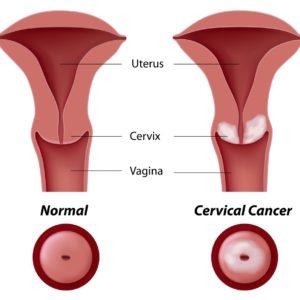 Diéta genitalium