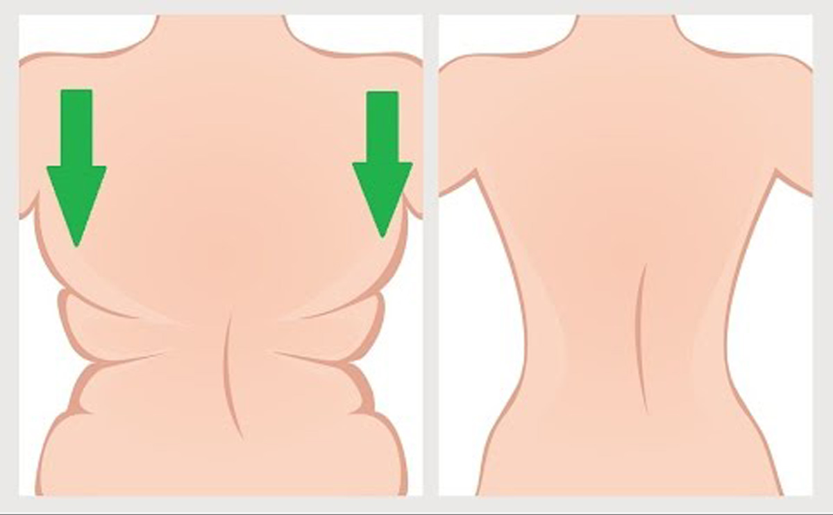 kolorektális oligometasztatikus rák hpv bőrfájdalmak