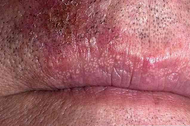 Fordyce-foltok: furcsa elváltozások az arcon - HáziPatika