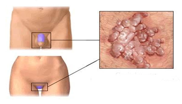 A condyloma acuminatum tünetei, kezelése és megelőzése - Nemi szemölcsök rádióhullámokkal