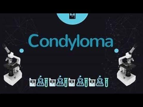 a méhnyak lapos condyloma biopsziája