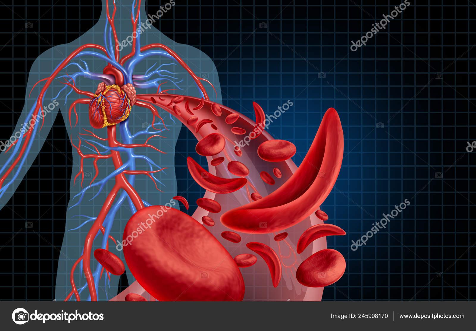 vérszegénység ziekte