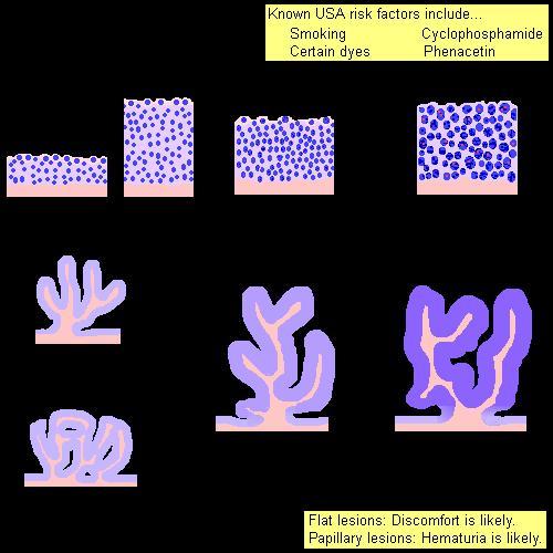 a hólyag urothelialis papilloma