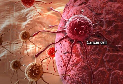 agresszív rákos hólyag