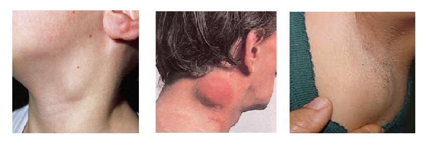rákos ganglion hodgkin