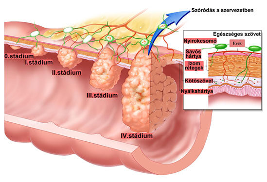 hasi fájdalom rák kezelés az ujjak között