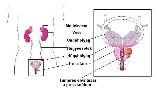 Prosztatarák tünetei és kezelése - HáziPatika