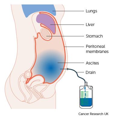 Petefészekrák tünetei és kezelése