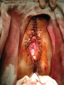 otc kezelés a giardia esetében embereknél kezelik a papilloma vírust?
