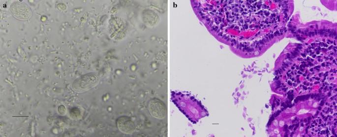 giardia duodenalis diagnózis szemölcsökkel járó szövődmények