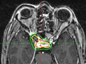 Az agytumor 8 csendes jele | BENU Gyógyszertárak