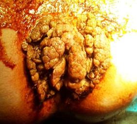 prosztatarák urológia bélférgek csirkékben