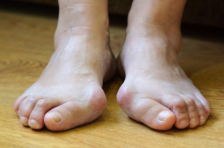 a lábujjak kezelése között növekszik féreghajtó jelentése marathi nyelven