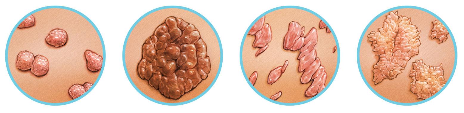 vastagbélrák a nők tüneteiben hpv a nemi szervekben