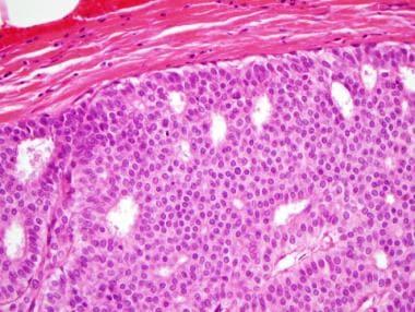 A méhnyak pikkelysejtes karcinóma kezelése - Szarkóma