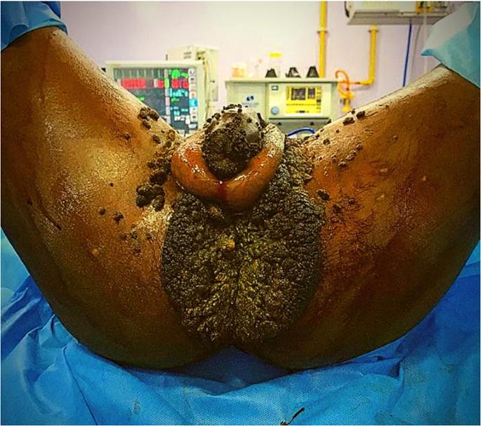 bokor levenshtein condyloma gigant