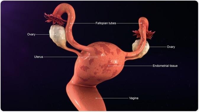 Endometrium daganatok, endometriumrák tünetei, kivizsgálása, Endometrium rák endometriosis