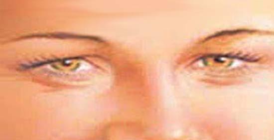 Hogyan távolítsuk el a papillomát a szemhéjon, és hogyan hat a szemre?