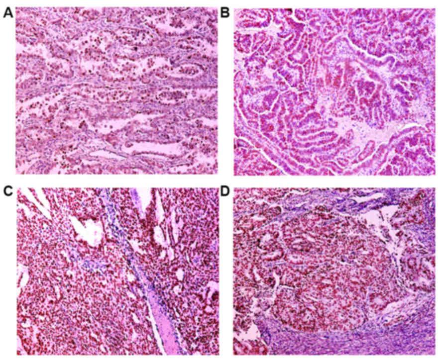 Endometrium daganatok, endometriumrák tünetei, kivizsgálása