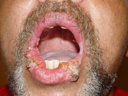 hatékony gyógyszerek a helminták számára gyermekek számára a giardia tünetei az embereknél