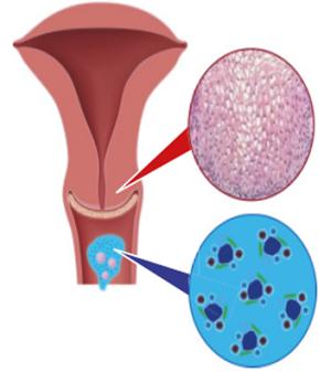 hpv magas kockázatú genitourinary