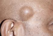 papillómák és atheroma lipoma óvszerek eltávolítása ami jó a nemi szemölcsök számára