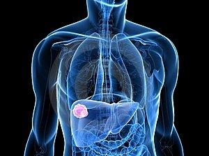 hasnyálmirigyrák jóindulatú daganatok