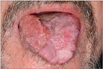 papillomavírus a nyelven